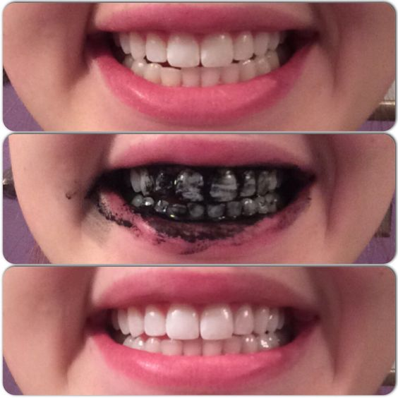 tooth-example-black-charcoal